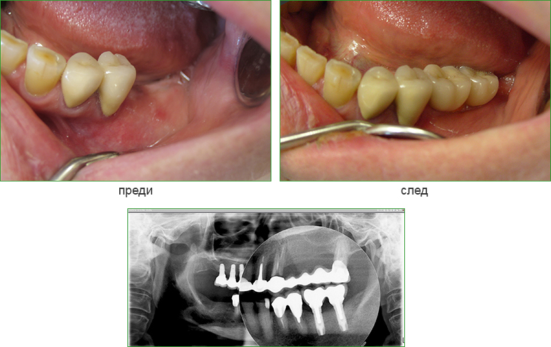 Implants  are placed in the place of the missing back teeth of the lower jaw