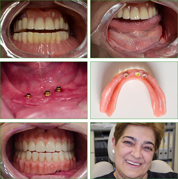 Denture stabilization via implants