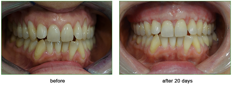 result of the treatment of the gum recession using Alloderm 20 days after the surgery