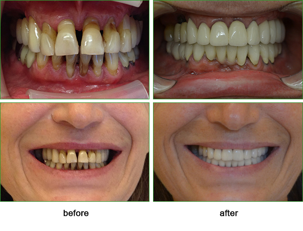 inflamation of the gums in very advanced stage and the result after treatment